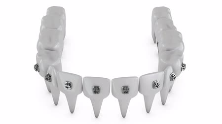 braces on teeth : Animation dental brackets and tooth implant on a white background Stock Footage