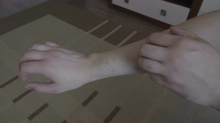 az érintett : Teenage male scratching his hand affected from small red rash or allergy