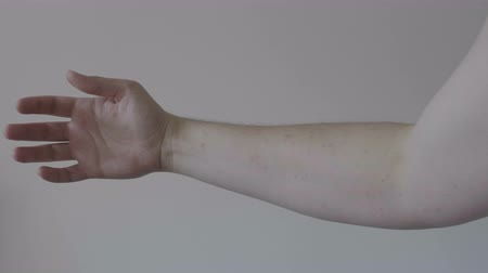 извержение : Severe eruption of skin on young allergic man arm dermatological disease concept
