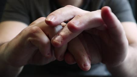 gnaw : Close view of male hands with strongly bitten nails. Finger selection with alarm. Ugly bitten fingers, cuticles, wounds on the fingers. Bad habit. The concept of onychophagy and dermatophagy. Stock Footage