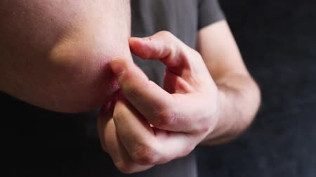 pullu : A man scratches a rough patch of skin on his elbow, a seasonal skin problem. Shots of a person scratch the skin, show skin disease. Stok Video