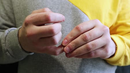 rude : Ugly ugryzienie fingers, biting nails, cuticles, wounds on the fingers. Nail-biting habit. The concept of onychophagy. unattended nail, cracked skin, bad nail grooming.