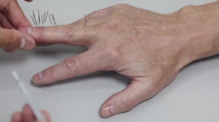 akupunktura : Acupuncture: needles inserted in a hand using the inserter