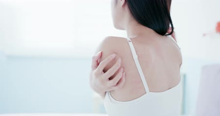 alergia : woman scratching her shoulder and neck because of dry skin at home