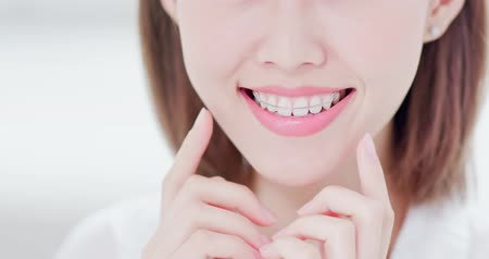 goma : Close up of Beauty woman wear retainer for teeth and smile to you Stock Footage