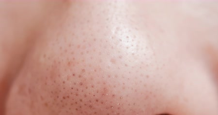 пятна : close up of blackheads on asian woman nose