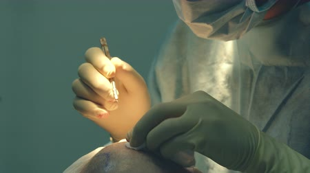 hair growth : Baldness treatment. Hair transplant. Surgeons in the operating room carry out hair transplant surgery. Surgical technique that moves hair follicles from a part of the head. Stock Footage