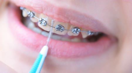 braces on teeth : Girl in braces cleans her teeth with interdental brush for bracket system. Stock Footage