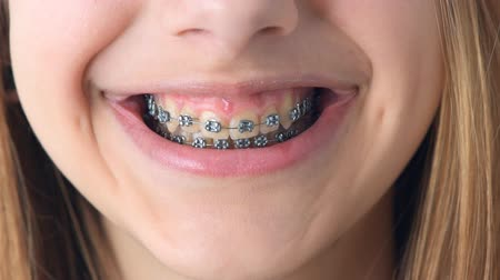 brackets : Beautiful smiling girl with retainer for teeth. Stock Footage