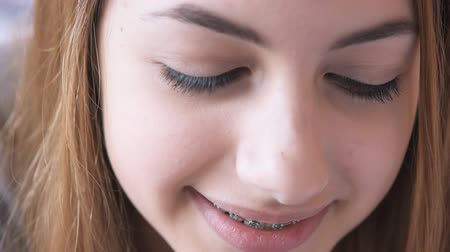 braces on teeth : Female using her mobile phone. Stock Footage