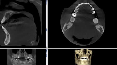 usg : real life MRI scan of man jaws for stomatology dentist research new quality medical science dental footage animation screen