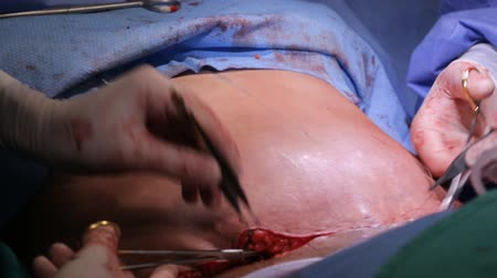 operacja plastyczna : Liposuction surgery procedure. Plastic Surgery, fat removing and stitching procces Wideo