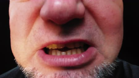 betrokken : Closeup mouth of man with crooked teeth. Unshaven aggressive man swears.