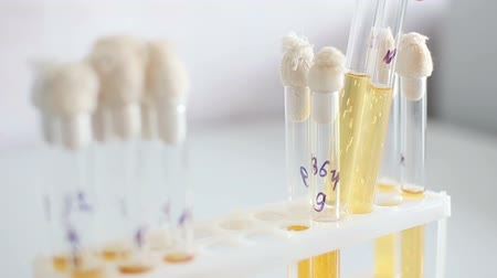 tüp : Microbiology laboratory, researching materials in the tubes