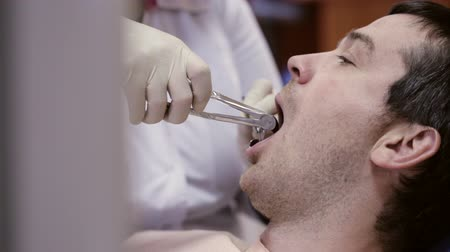 çekme : Dentist pull out tooth at dental clinic.