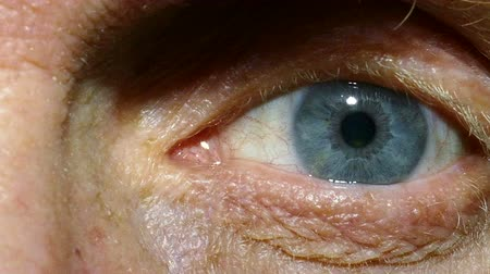 rectus : An eye of old man with red capillaries. Macro