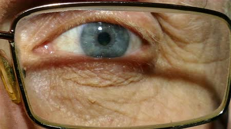 rectus : Eye of old man wearing spectacles with red capillaries. Macro