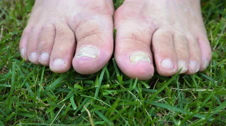pedikür : Fungal infection of the nails on the legs of an elderly person close-up.