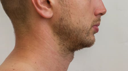 hair growth : Lateral part of the male face growing beard of young caucasian man