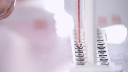 собирают : Medical clinic. A blood test. A close up of pipettes with blood samples Стоковые видеозаписи