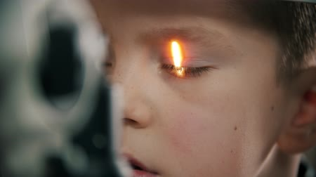 yarık : A little boy having a treatment in eye clinic - shine light in the eye Stok Video