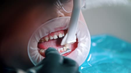 aparat : A little boy having a cleaning treatment in the dentistry - collect water with a suction tube from the mouth