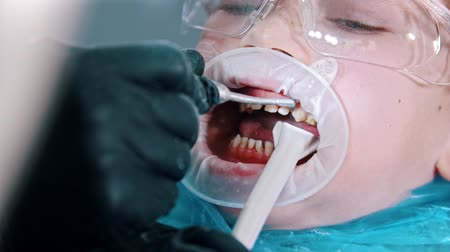 aparat : A boy in protective glasses having a teeth cleaning treatment in the dentistry - collect the excess water with a suction tube from the mouth