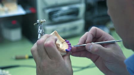 A dental technologist makes denture lower jaw with a scalpel clears away excess wax.