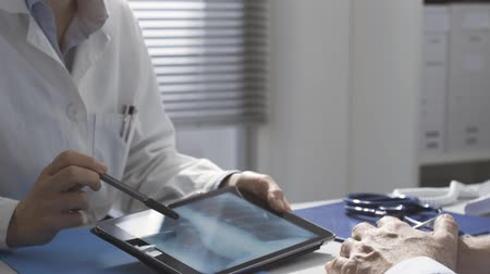 She is showing her radiograph on a digital tablet and explaining the diagnosis Stok Video