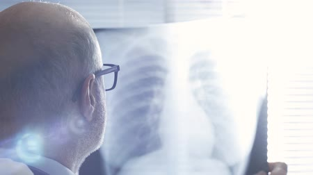 Professional doctor working in office, looking at patients radiograph of medical rib, medical exam concept