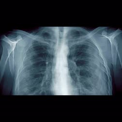 radiologia : X-ray of the human body from top to bottom. Vídeos