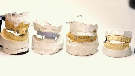 насаждение : Dental technician workplace. Casts of a jaws.