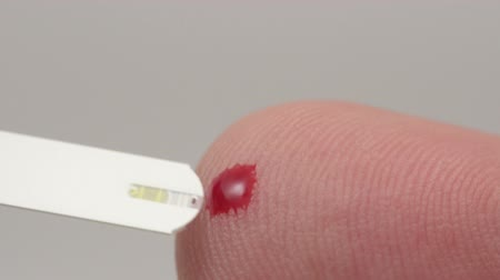 диабет : Macro video of self testing for diabetes. The blood sample is being taken by a stick.