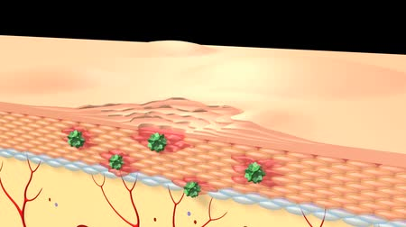 pus : human skin cells & hair follicles structure. Stock Footage