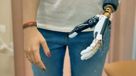 končetina : Robotic prosthesis arm connected to a disabled woman hand. 4K.