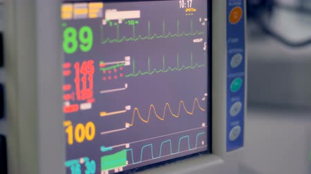 heart rate : Real medical monitor displays vital signs during surgery.