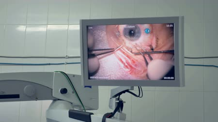 terribly : An eye surgery shown on a medical display.