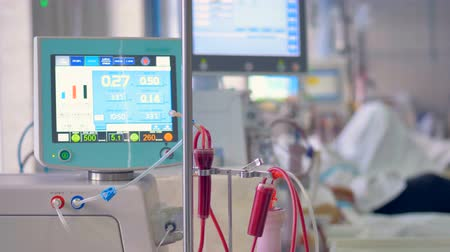 reanimation : Medical screen displays patients medical parameters: pulse, blood pressure, temperature. Stock Footage