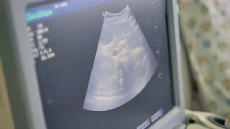 ultrasound scan : A screen showing ultrasound test image. Stock Footage