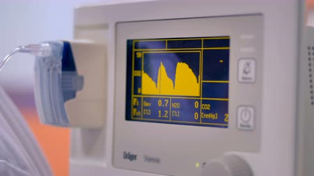 factor : Close up of a patients anaesthetic monitor
