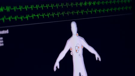 vital signs : Patient monitor displays vital signs. Ecg, cardiogram concept. Stock Footage