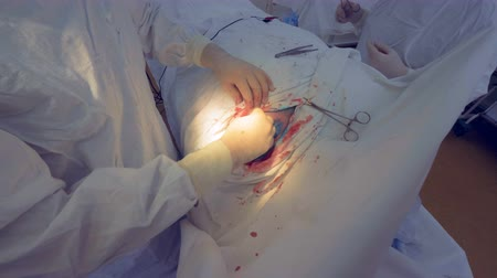 manipulacja : Surgeon finishes perfoming surgery. Doctor disinfects medical suture. Wideo