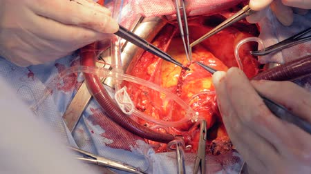cardiologista : Heart vein is being examined by a team of doctors in an operation process