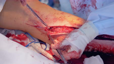 angioplasty : Vascular bypass procedure held by a surgeon