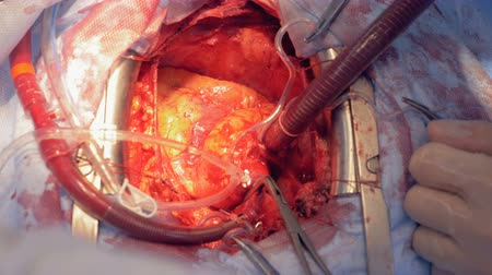 pulsate : Close up of a beating heart during surgery Stock Footage