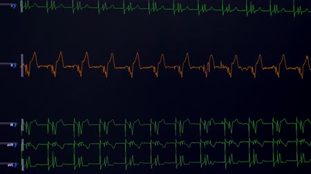 vital signs : Lines of vital rates, heart rate being shown on a medical screen