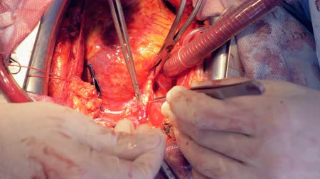 pulsate : Veins and arteries are being examined during an open heart surgery Stock Footage