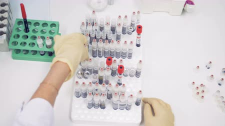 doente : A female nurse puts blood samples in tubes onto a special rack on a table. Top view.