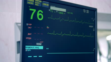 heart monitor : Special monitor shows hearts condition during a surgery. 4K.
