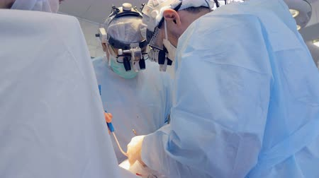 chirurgia : Surgeons are working at operating room. Close-up. Wideo